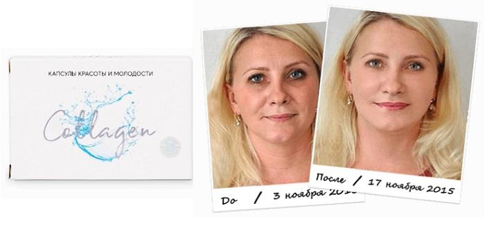 Collagen капсулы от морщин: позволит вам выглядеть гораздо моложе и свежее своих лет!